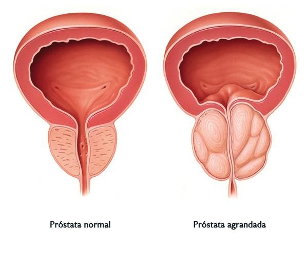лечения простатита лещиной отзывы