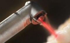 Лазерная имплантация