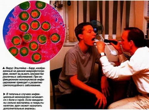 Инфекционный мононуклеоз минет