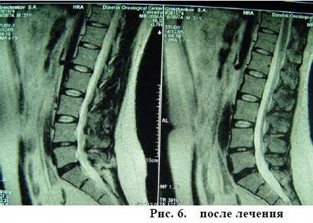 Лечение позвоночной грыжи методом вертеброревитологии в россии